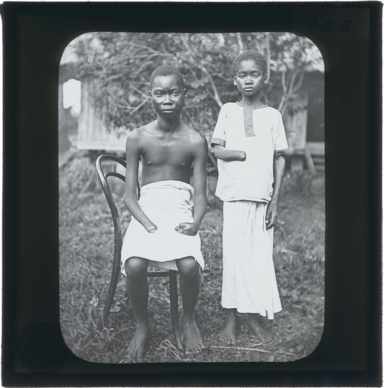 A Young Man and Child with Severed Limbs